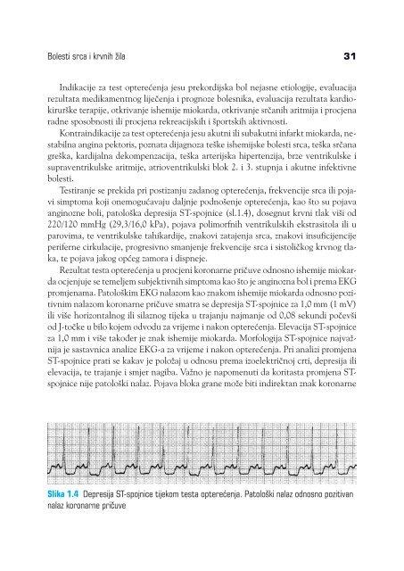 liječenje hipertenzije u baškiriji super lijek za hipertenziju