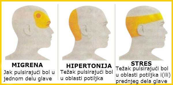 glavobolje, hipertenzije, stres