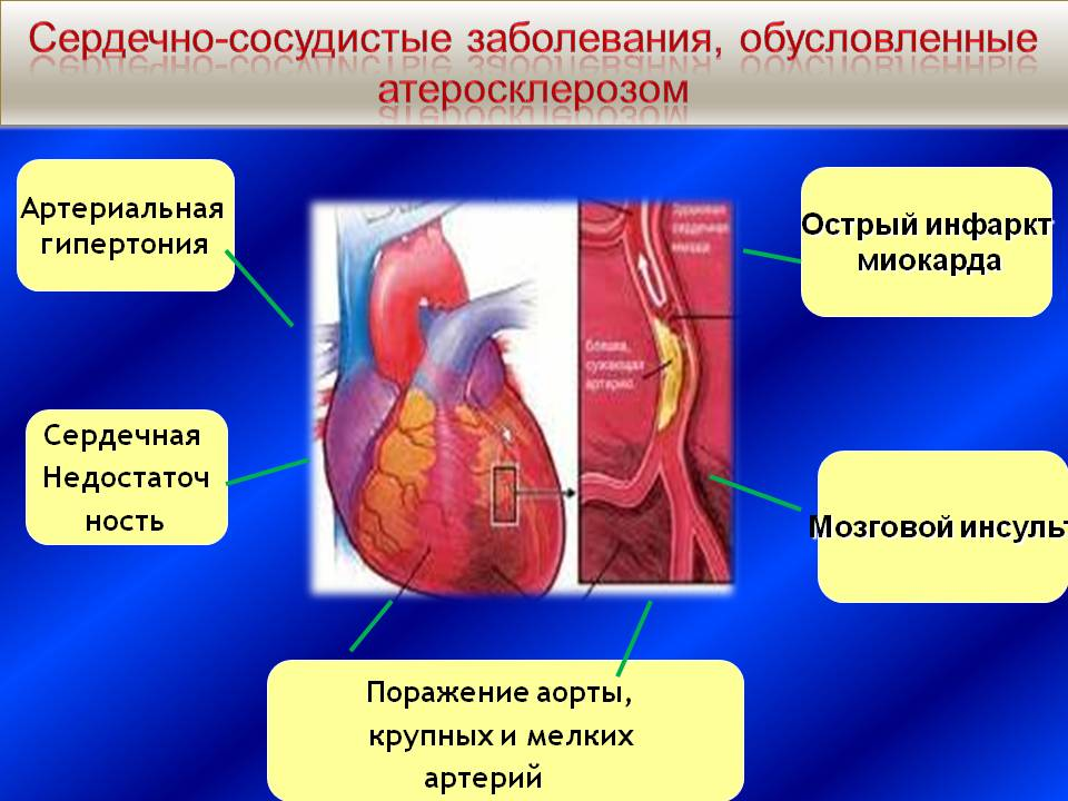 simptomi hipertenzija ili hipotenzija