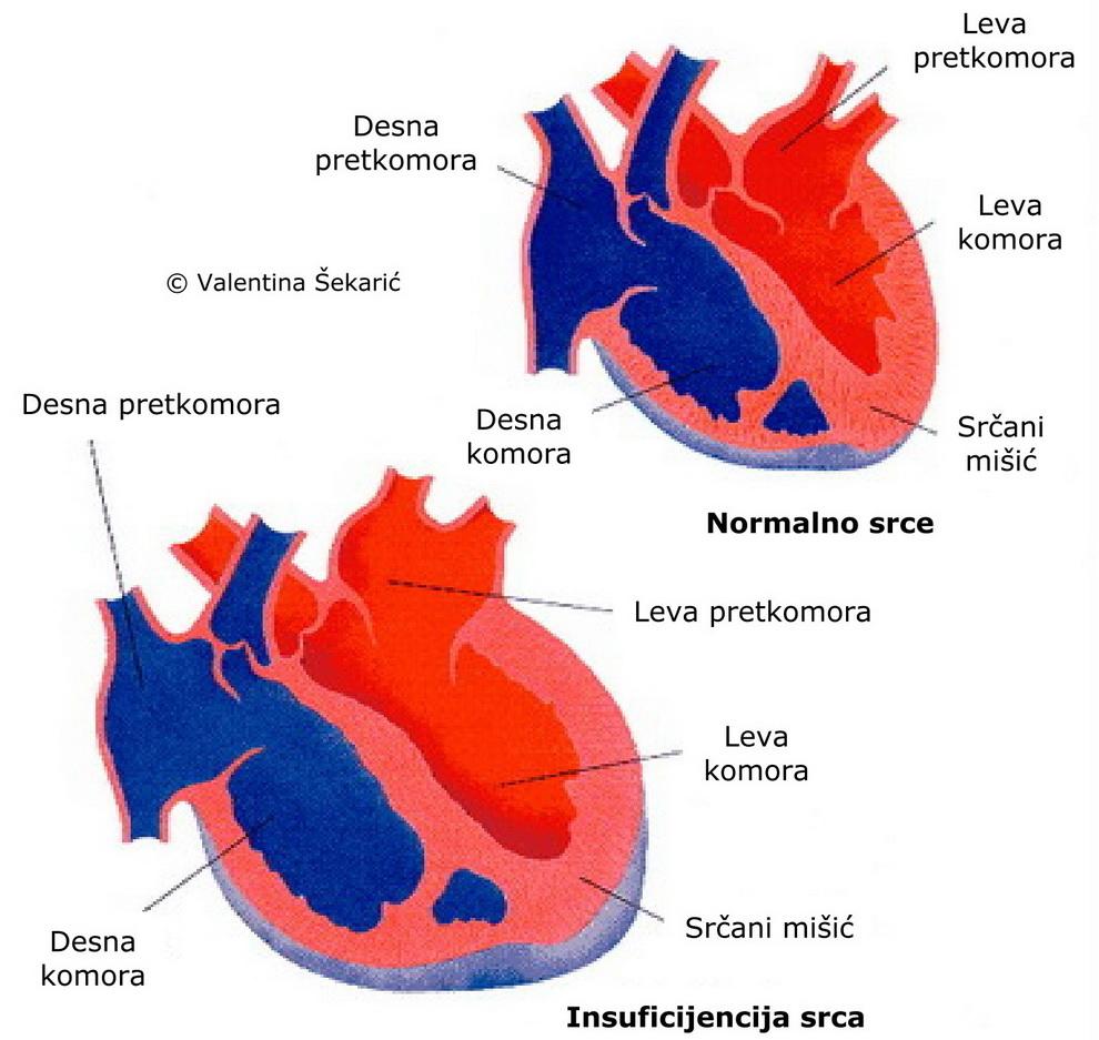 hipertenzija srca komora)