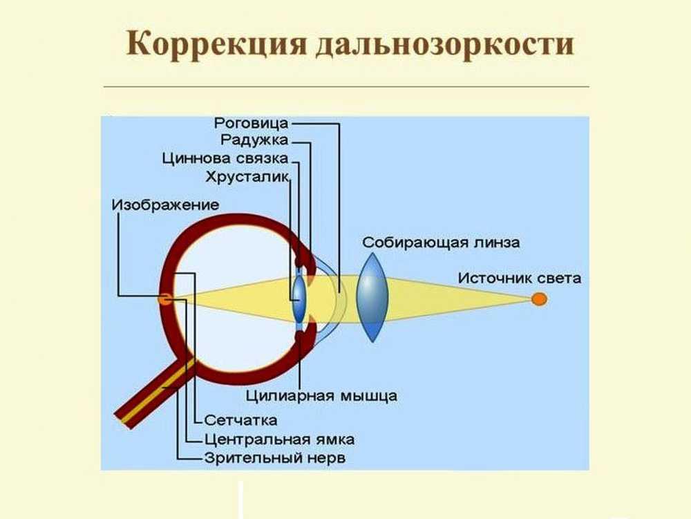 hipertenzija može raditi kao zavarivač)