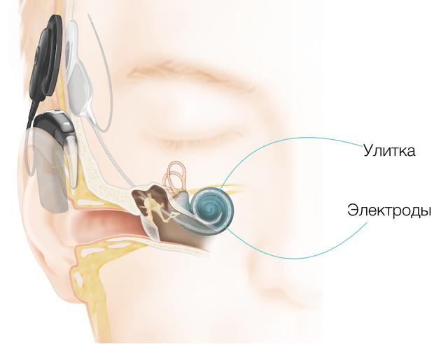 akutni senzorineuralni gubitak sluha i hipertenzije