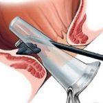 Hipertenzija 3 stupnja 3 stupnja rizika 4 što: što je to? - Distonija February