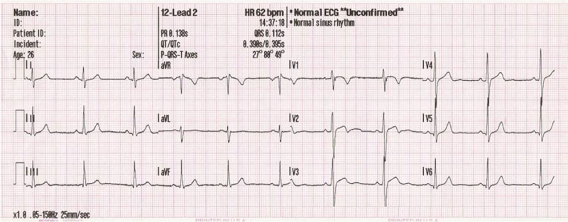 ekg srca hipertenzije)