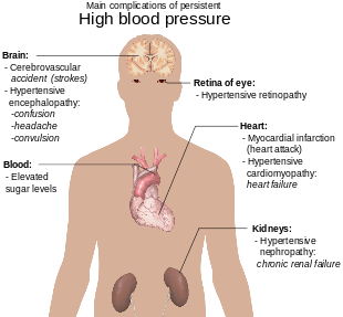tremor hipertenzija