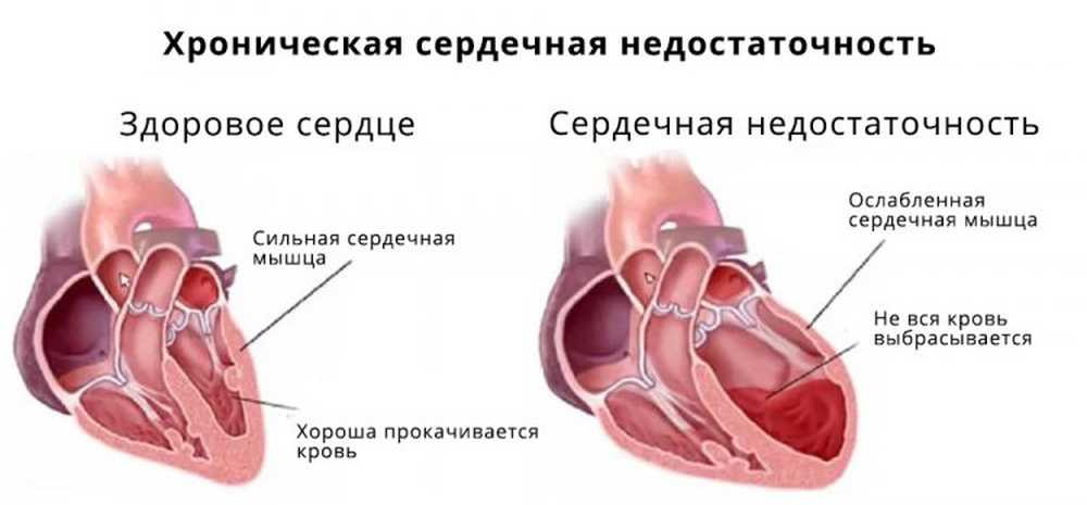 nije bolan srce dovoljno zraka)
