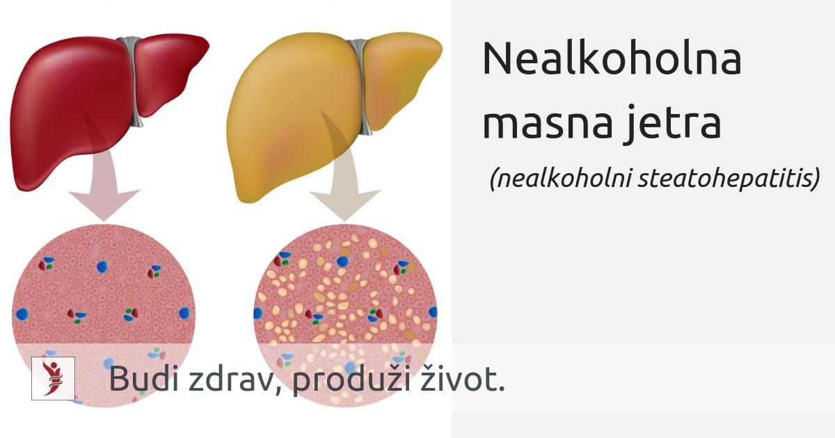 proširene jetre i hipertenzije
