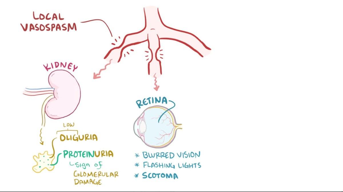 Eklampsija i druga hitna hipertenzivna stanja