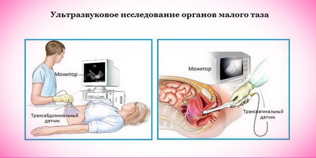 tishchenko receptima iz hipertenzije)