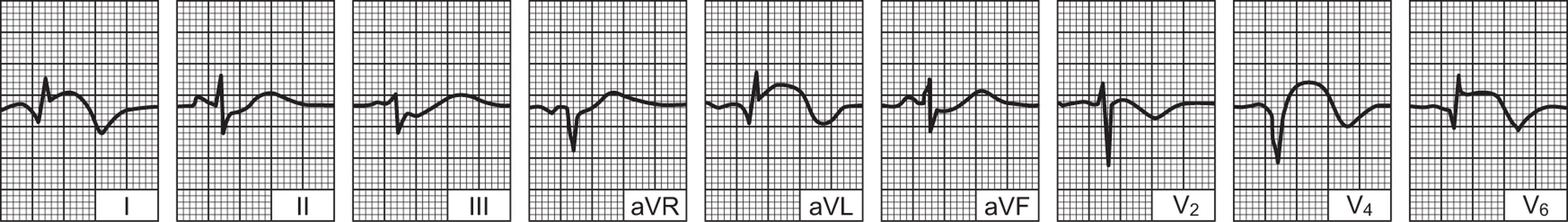 ekg hipertenzije i infarkt miokarda