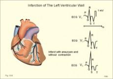 ekg srca hipertenzije kombinirana terapija u liječenju hipertenzije