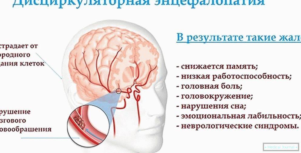 Što je vegetativno-vaskularna distonija na hipertoničnom tipu