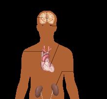 glavobolje, hipertenzije
