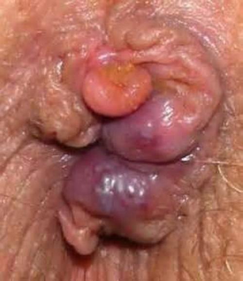 Hipertenzija stupnja 3, mogući rizik 4 - Distonija February