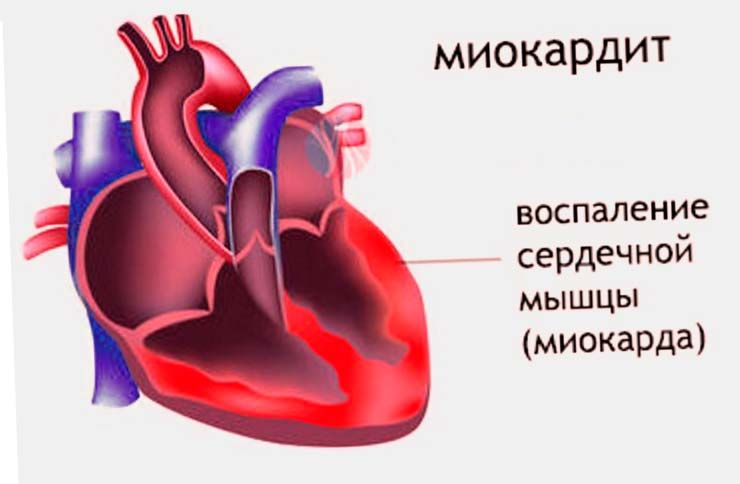 hipertenzija, bol u lopatici hipertenzija pilule bez recepta