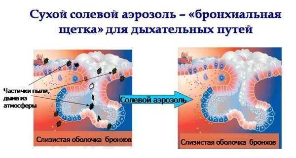 hipertenzija i soli svjetiljka)