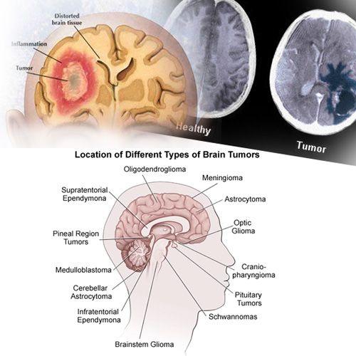 hipertenzija mri mozga da li hipertenzija gumi-gumi