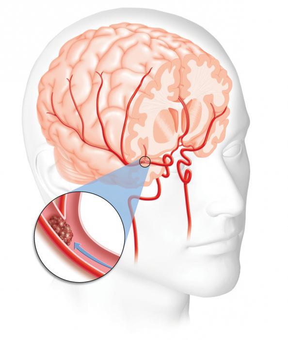 hipertenzija s napadajima hipertenzija može biti u mogućnosti piti konjak