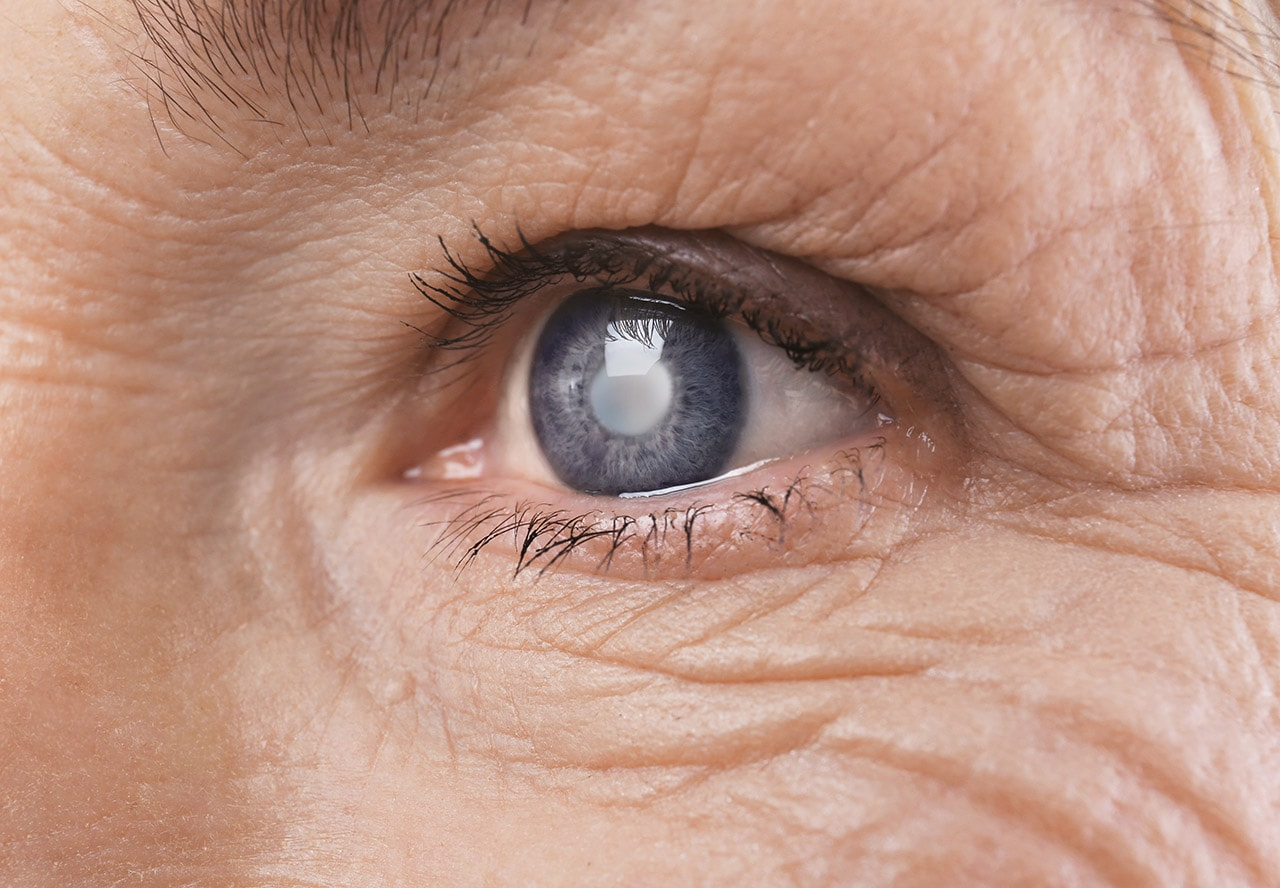 hipertenzija u oba oka)