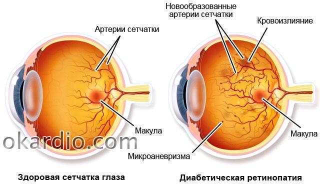 hipertenzije, retine angiopatiju