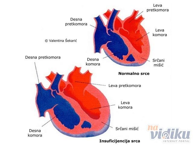 klima hipertenzija