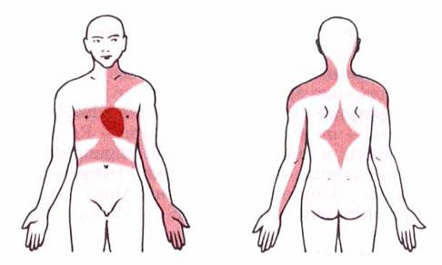 tablete za visoki tlak i angina pektoris