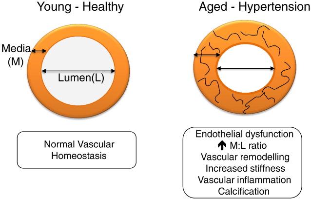 vaskularna hipertenzija