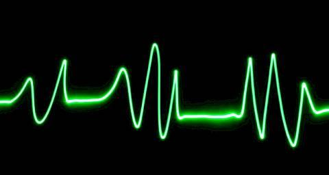 vježbe za hipertenziju i aritmije