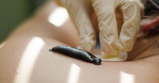 za liječenje hipertenzije korištenjem pijavica