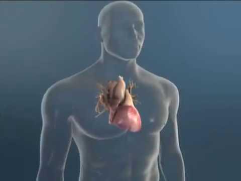 prošireno srce i visokog krvnog tlaka