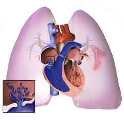 MSD priručnik dijagnostike i terapije: Plućna hipertenzija