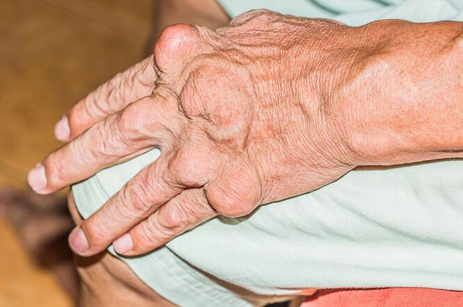 DASH dijeta za snižavanje visokog krvnog tlaka štiti i od gihta   Zdravlje - Kreni zdravo!