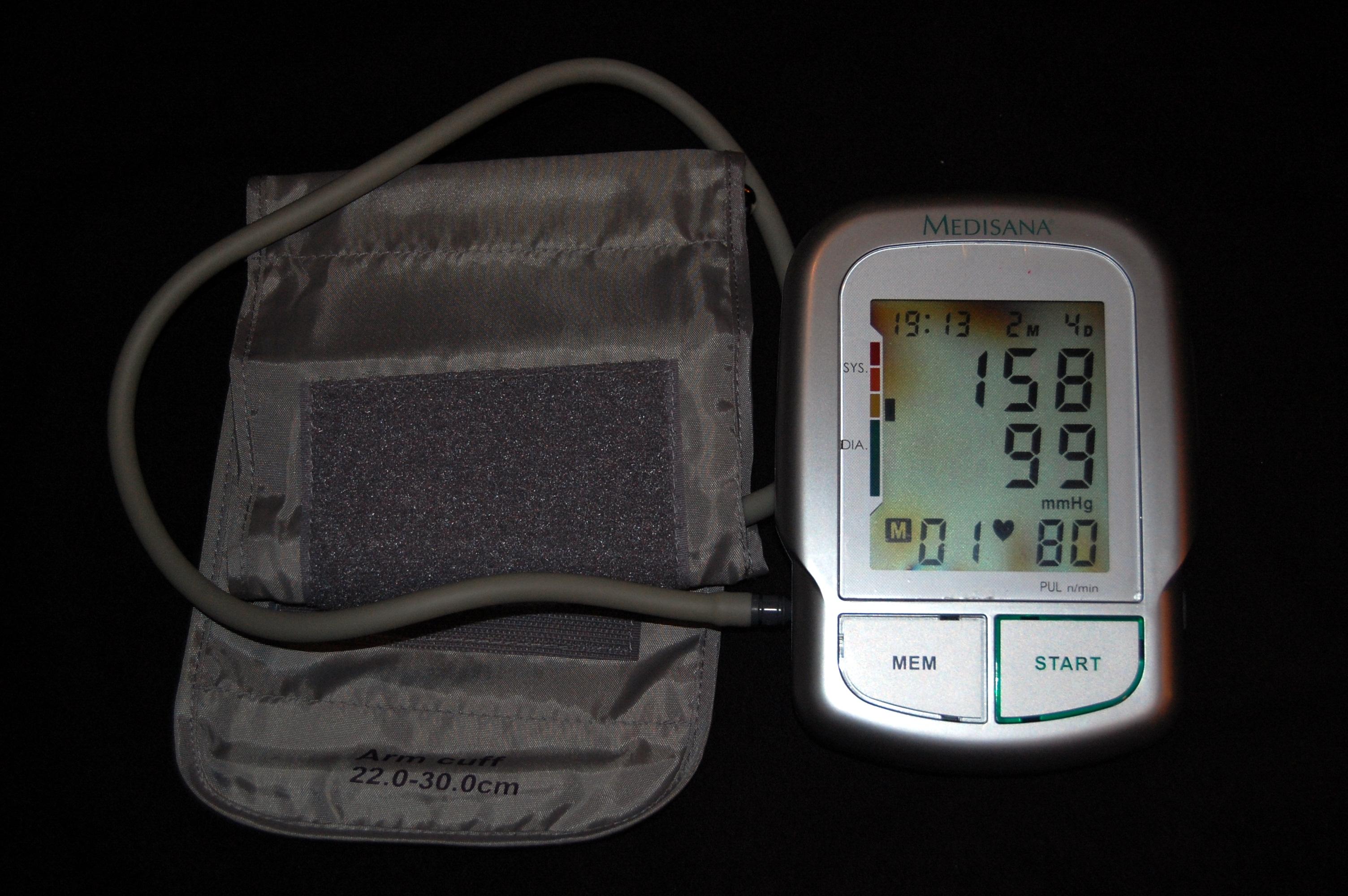 krvni tlak grafikon)