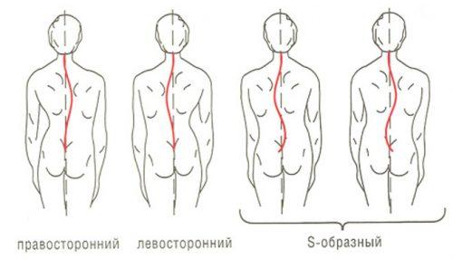 mashkov masaža hipertenzija)