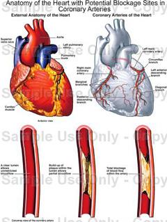 hipertenzija rizik od 1 stupanj 2