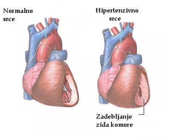 hipertenzija zabrane standard hipertenzije