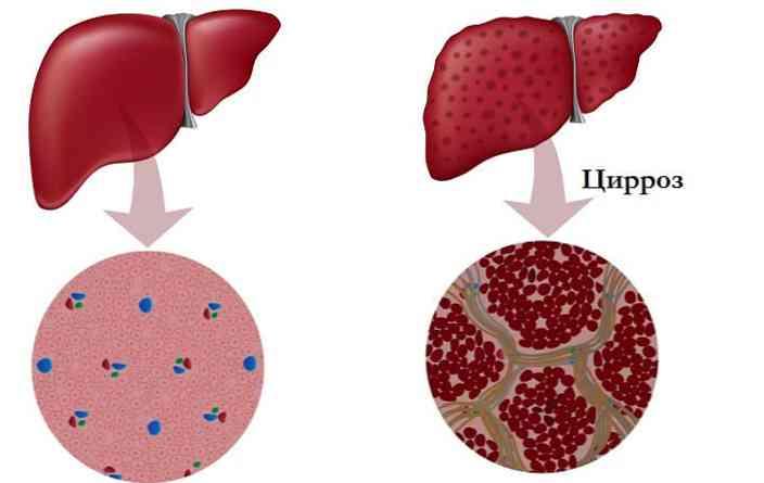 Arterijska hipertenzija u dugovječnim jetrima
