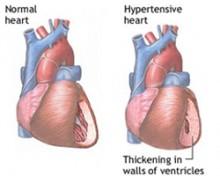 hipertenzija simptoma)