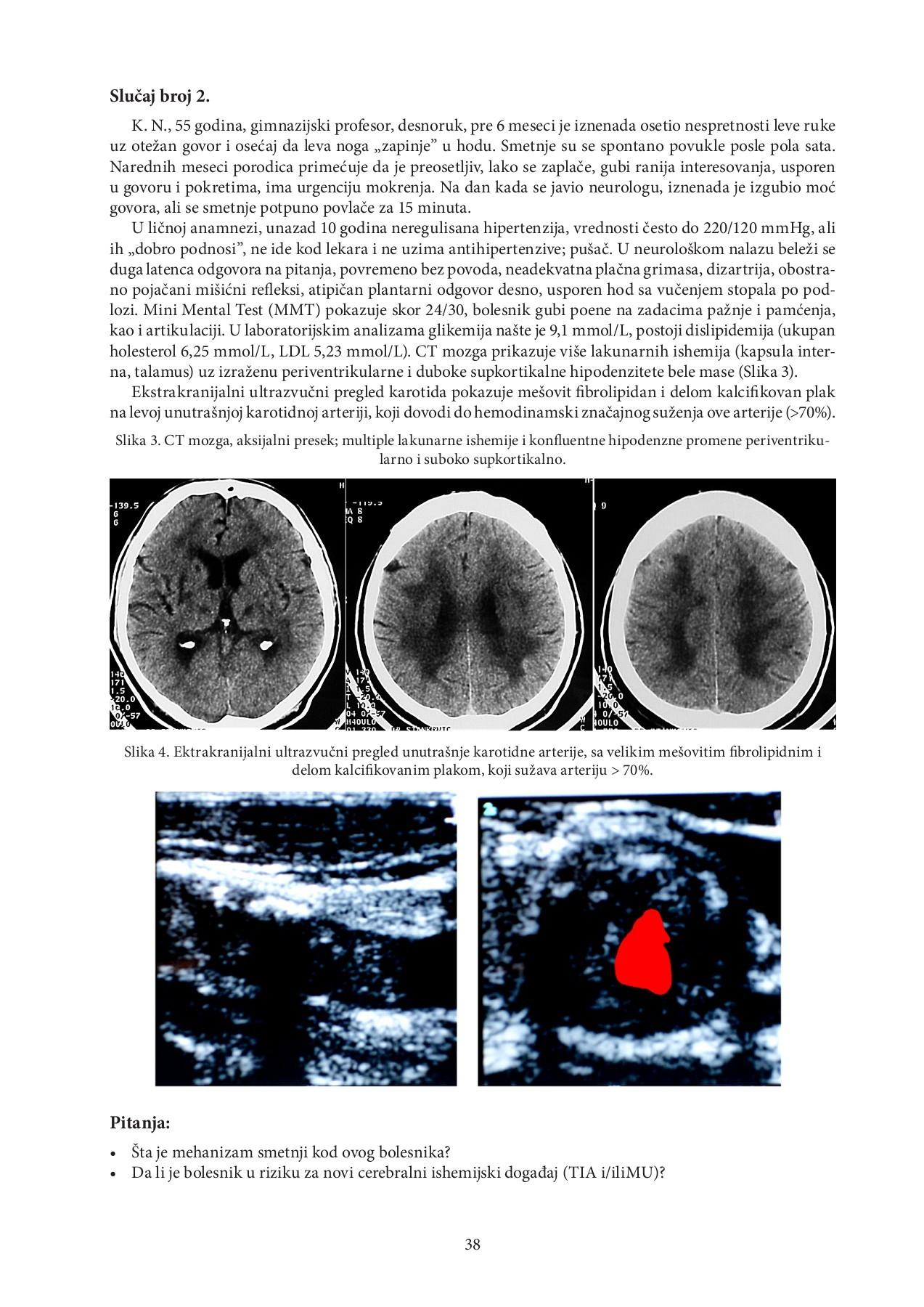 plućnog edema i hipertenzije povijest bolesti kronične hipertenzije
