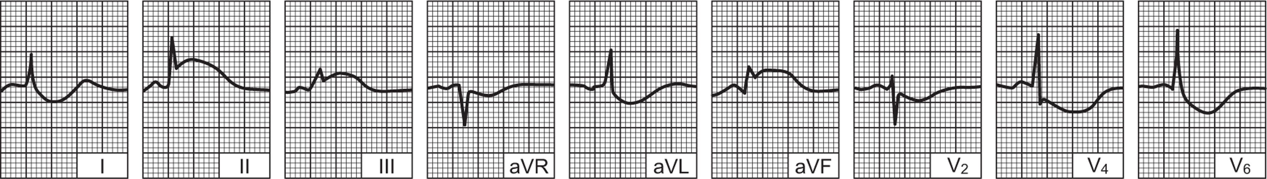 Kako je infarkt miokarda na EKG-u: pregled - Hipertenzija February