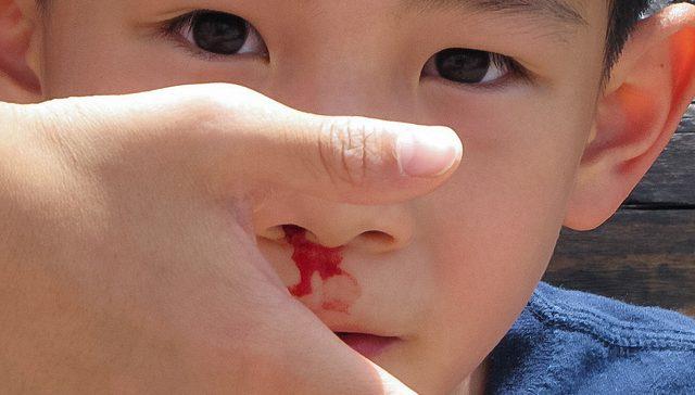 hipertenzija i krvarenje iz nosa