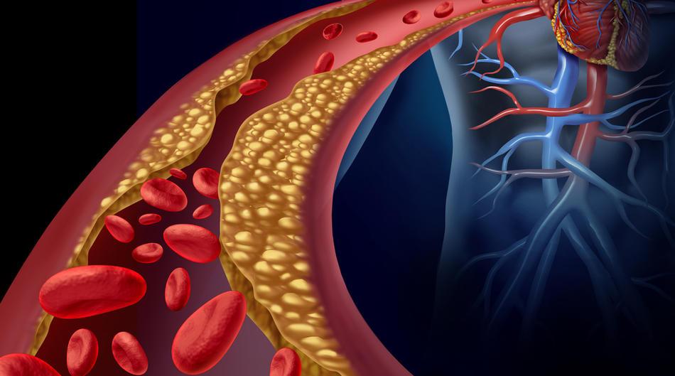 Je li moguće s zastojem od hipertenzije