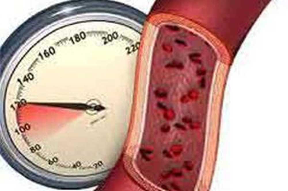 Što uzrokuje hipertenziju?