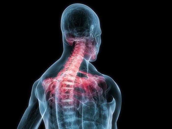 osteochondrosis uzrokuje hipertenzija)