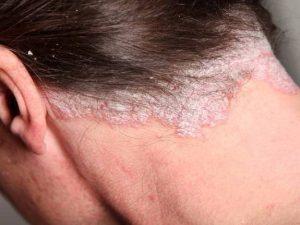 Psorijaza - uzroci, oblici bolesti i liječenje - PLIVAzdravlje