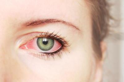 crvenilo oka u hipertenzije
