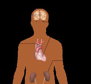Arterijska hipertenzija – tihi ubojica
