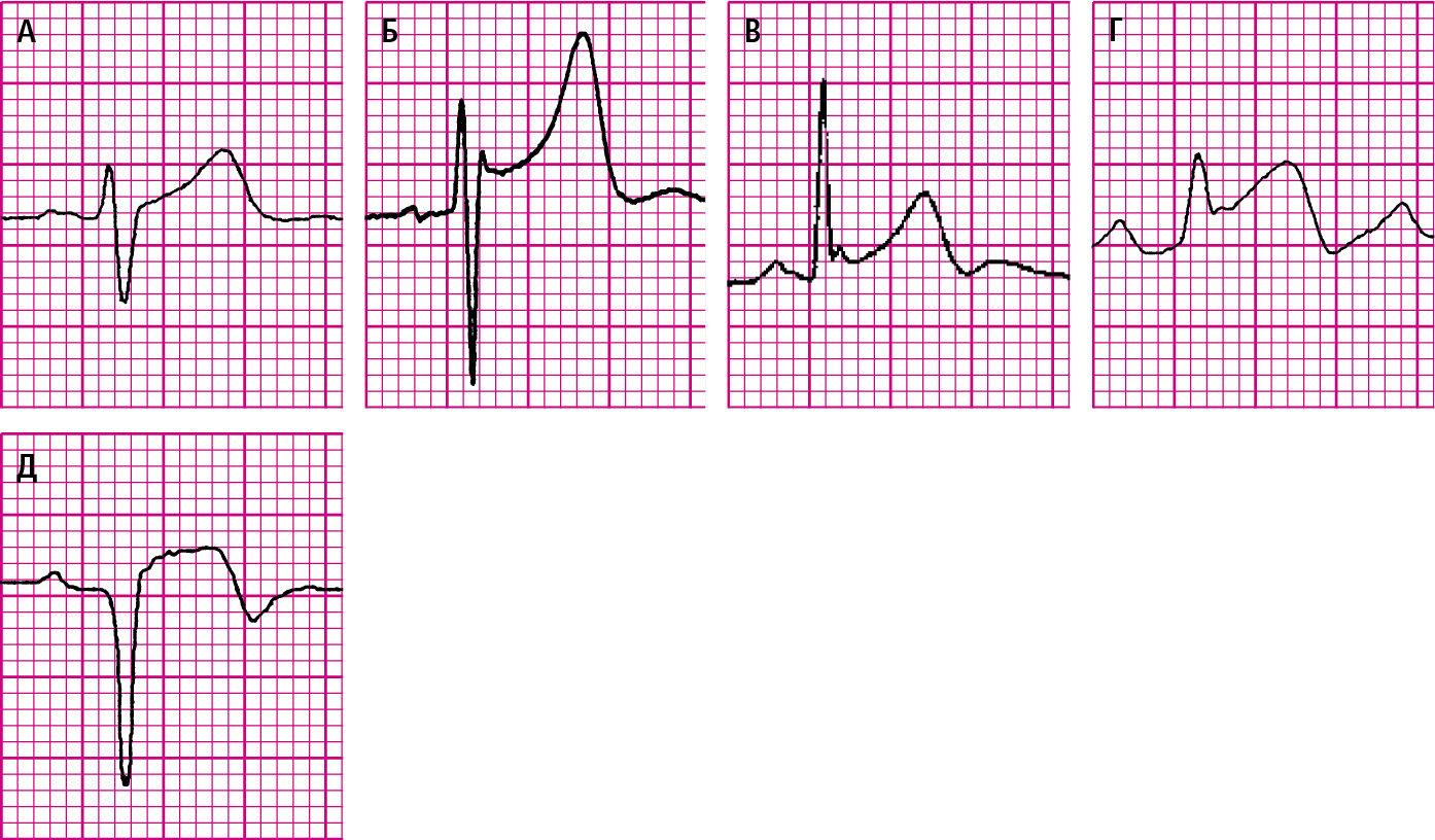 kardiogram hipertenzija)