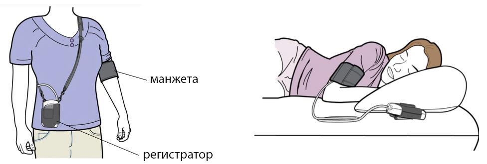 medicinski hipertenzija uređaj