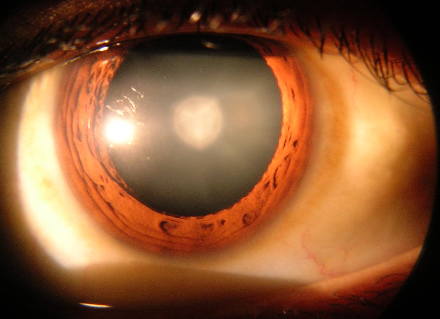 bolesti oka kod hipertenzije